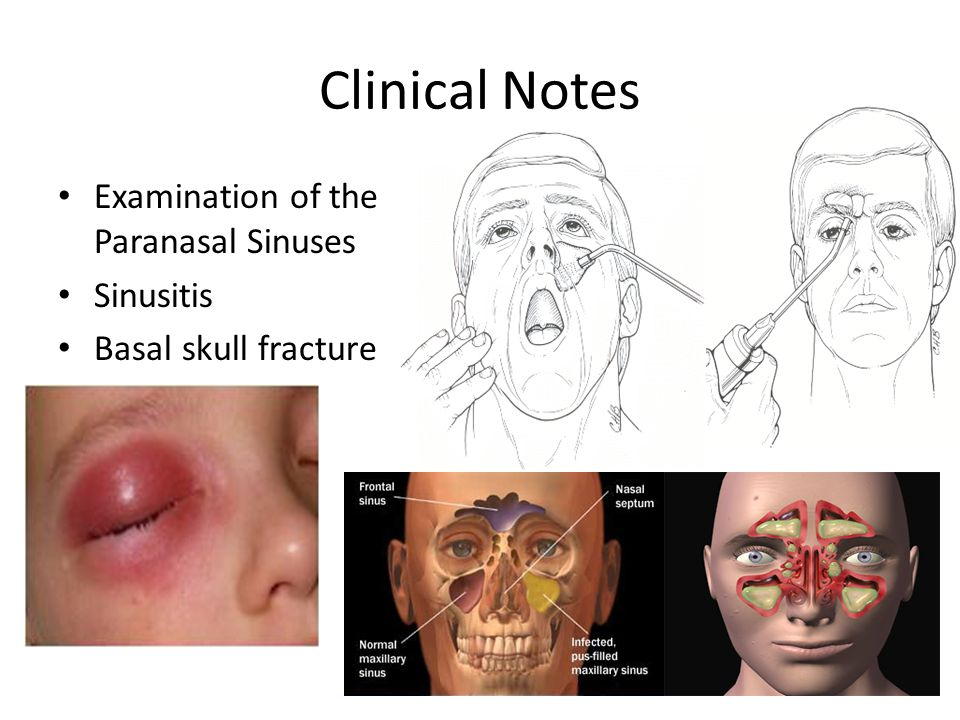 Clinical Notes Examination of the Paranasal Sinuses Sinusitis Basal skull fracture