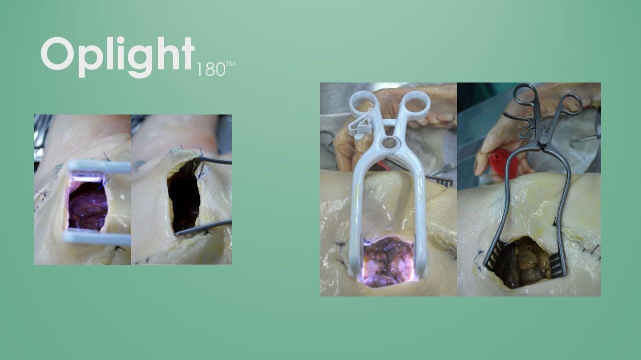 Oplight 180 TM