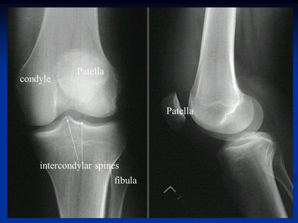 intercondylar spines Patella condyle fibula