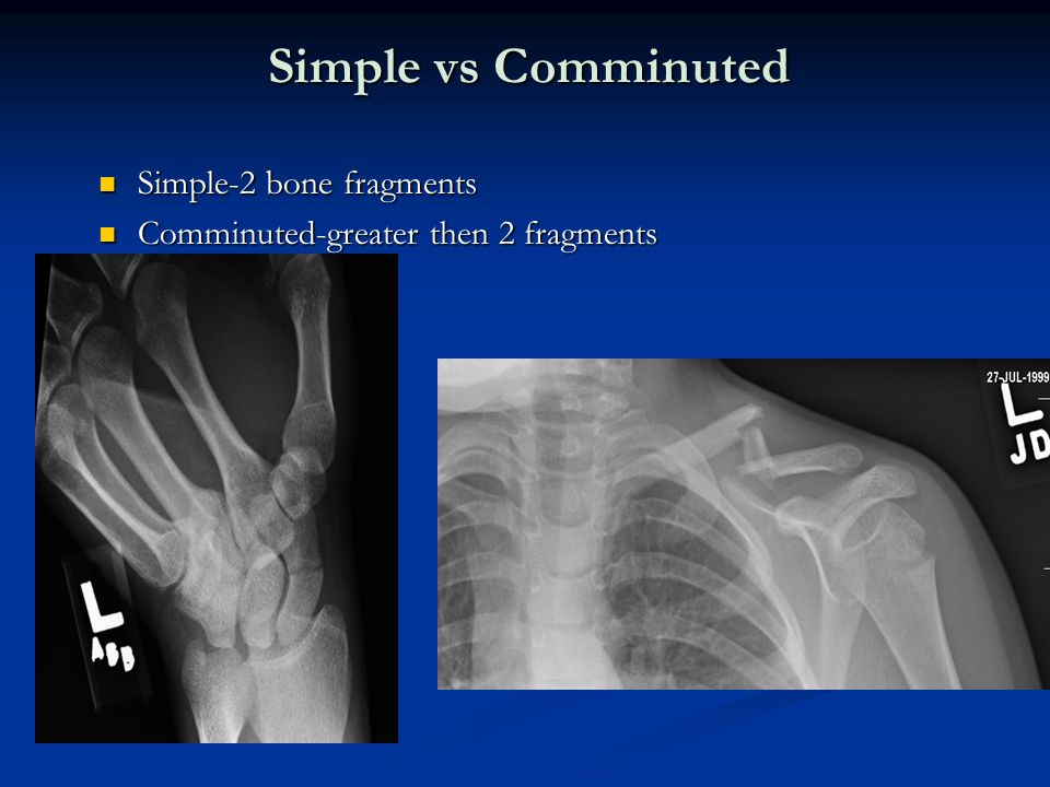Simple vs Comminuted Simple-2 bone fragments Simple-2 bone fragments Comminuted-greater then 2 fragments Comminuted-greater then 2 fragments