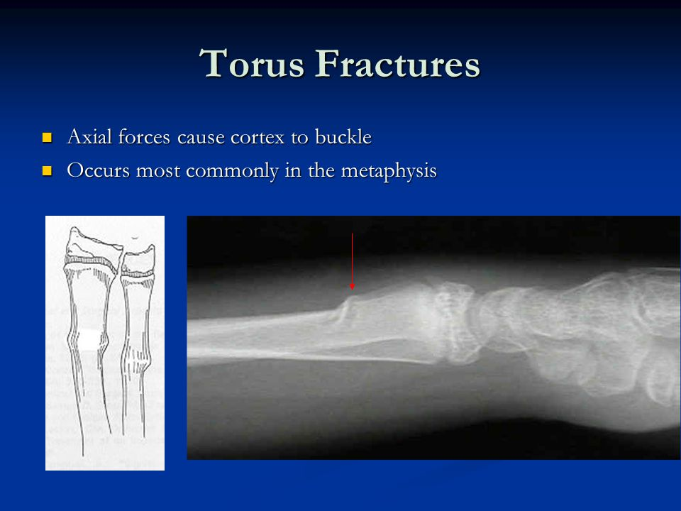 Torus Fractures Axial forces cause cortex to buckle Axial forces cause cortex to buckle Occurs most commonly in the metaphysis Occurs most commonly in the metaphysis