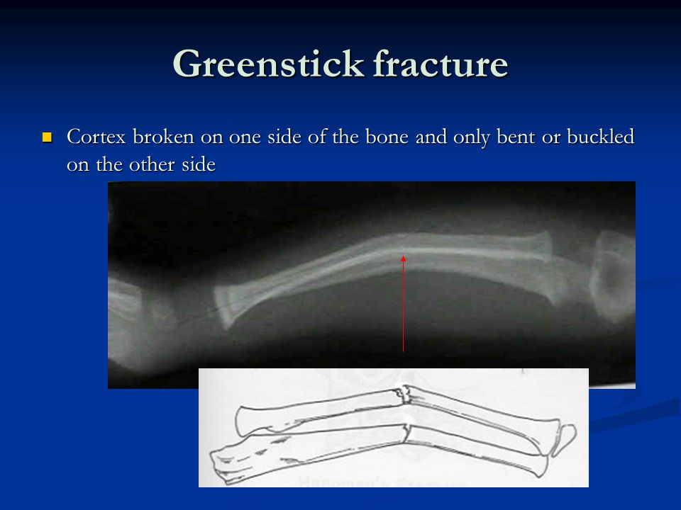 Greenstick fracture Cortex broken on one side of the bone and only bent or buckled on the other side Cortex broken on one side of the bone and only bent or buckled on the other side