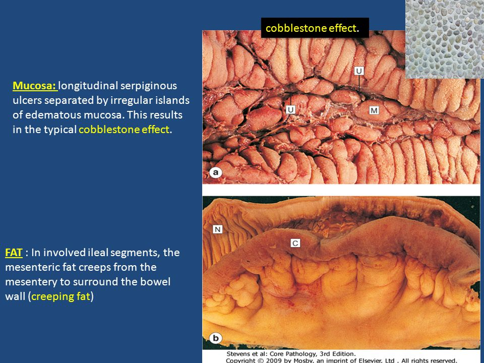 Mucosa: longitudinal serpiginous ulcers separated by irregular islands of edematous mucosa.
