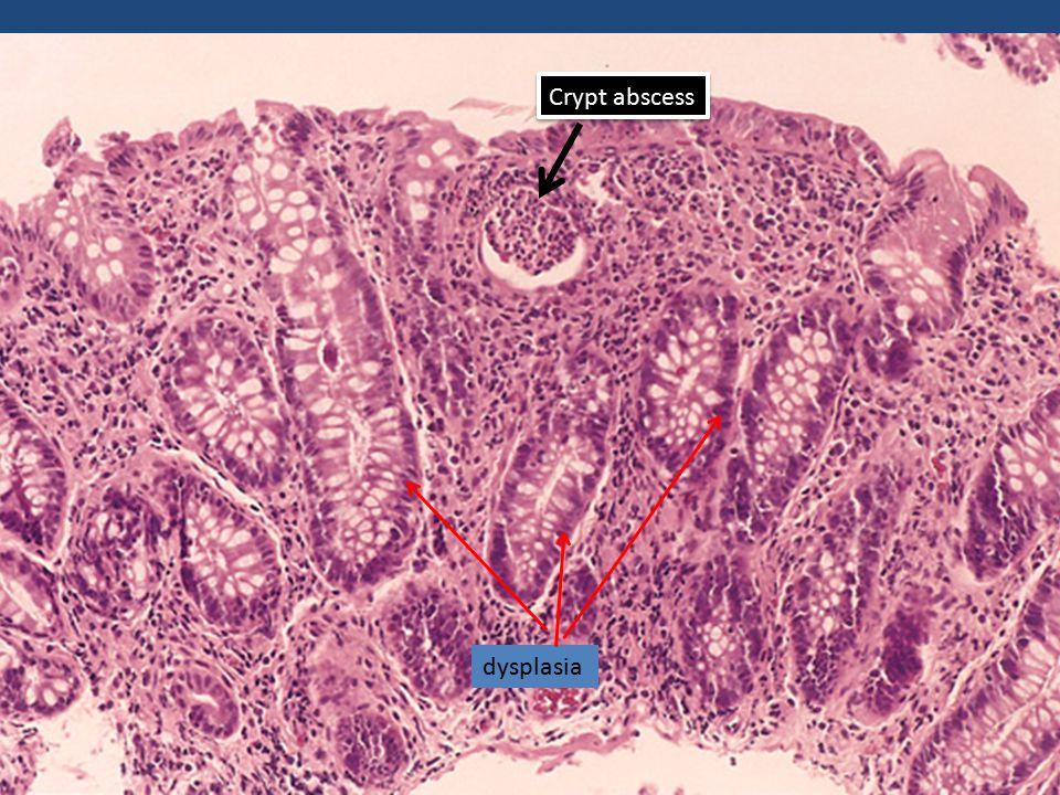 dysplasia Crypt abscess