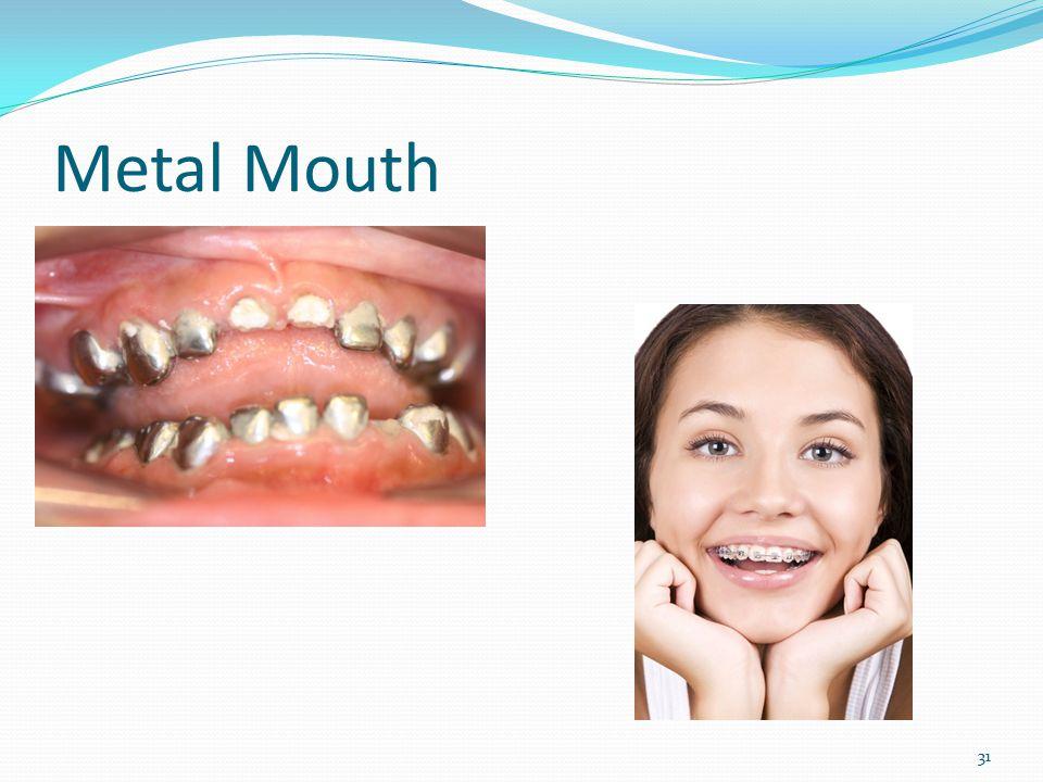Metal Mouth 31