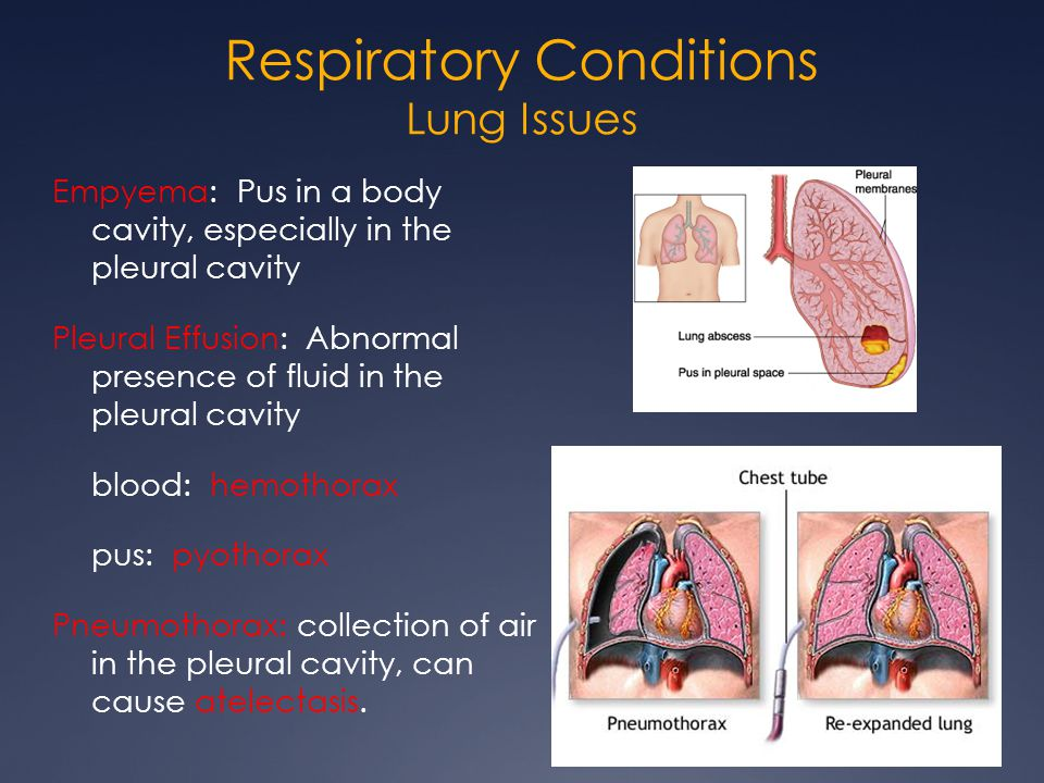 Respiratory Conditions Lung Issues Empyema: Pus in a body cavity, especially in the pleural cavity Pleural Effusion: Abnormal presence of fluid in the