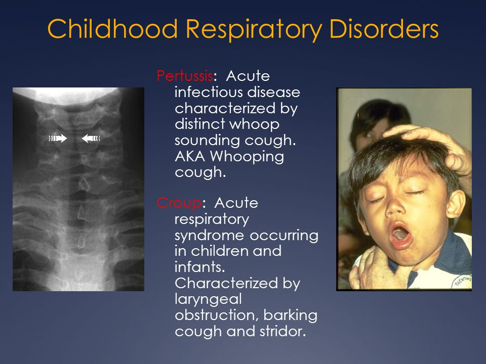 Childhood Respiratory Disorders Pertussis: Acute infectious disease characterized by distinct whoop sounding cough. AKA Whooping cough. Croup: Acute r