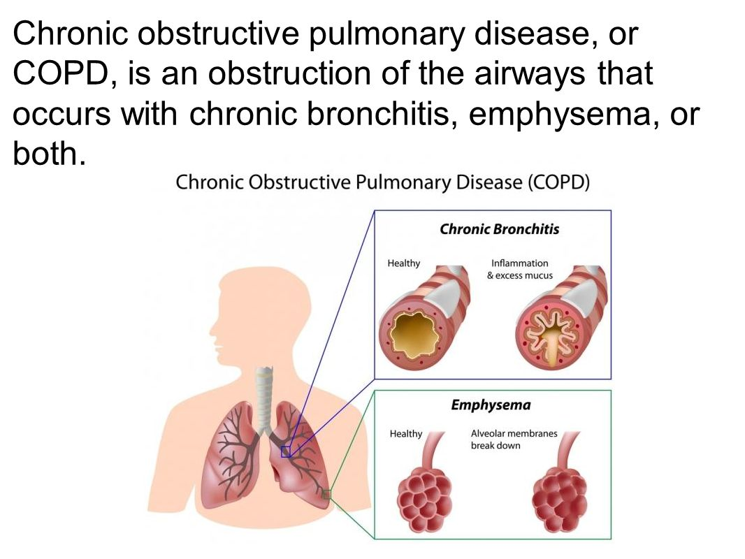 Chronic obstructive pulmonary disease, or COPD, is an obstruction of the airways that occurs with chronic bronchitis, emphysema, or both.