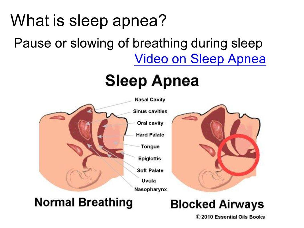 What is sleep apnea? Pause or slowing of breathing during sleep Video on Sleep Apnea