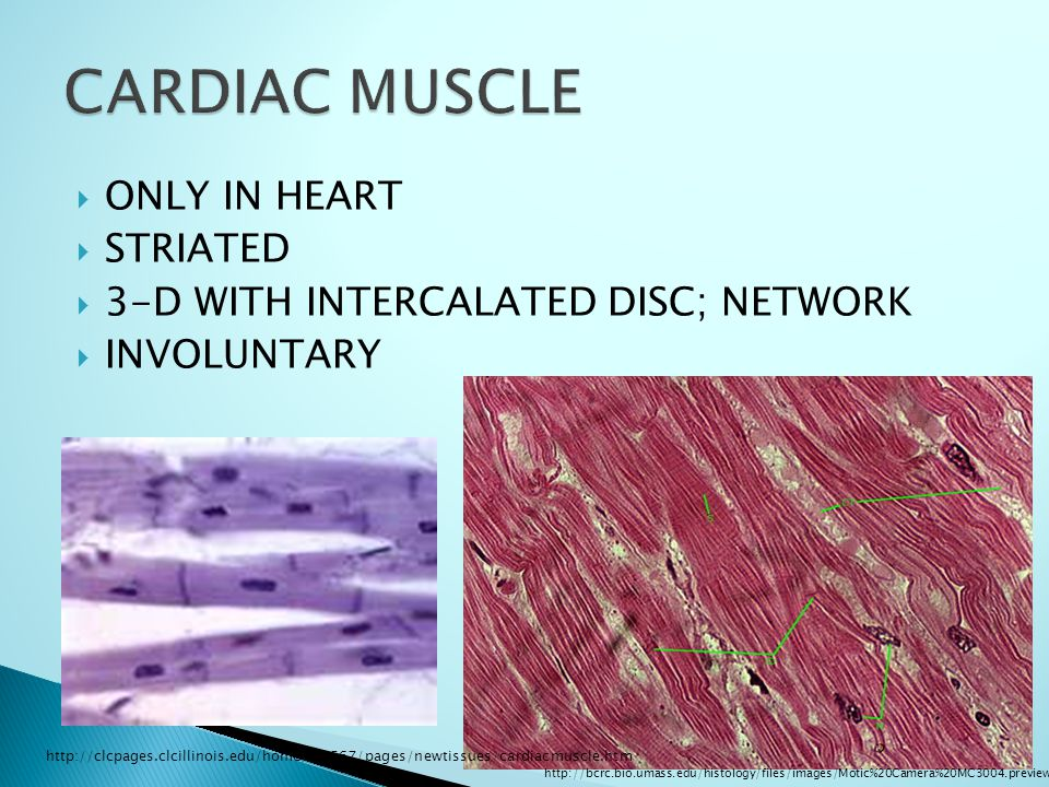  ONLY IN HEART  STRIATED  3-D WITH INTERCALATED DISC; NETWORK  INVOLUNTARY http://bcrc.bio.umass.edu/histology/files/images/Motic%20Camera%20MC3004.preview.jpg http://clcpages.clcillinois.edu/home/bio567/pages/newtissues/cardiacmuscle.htm
