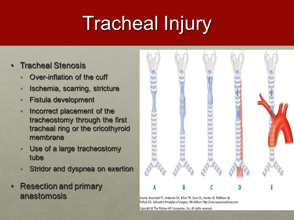 Tracheal Injury Tracheal Stenosis Tracheal Stenosis Over-inflation of the cuff Over-inflation of the cuff Ischemia, scarring, stricture Ischemia, scar