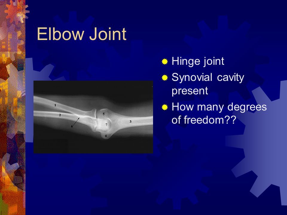 Elbow Joint  Hinge joint  Synovial cavity present  How many degrees of freedom??