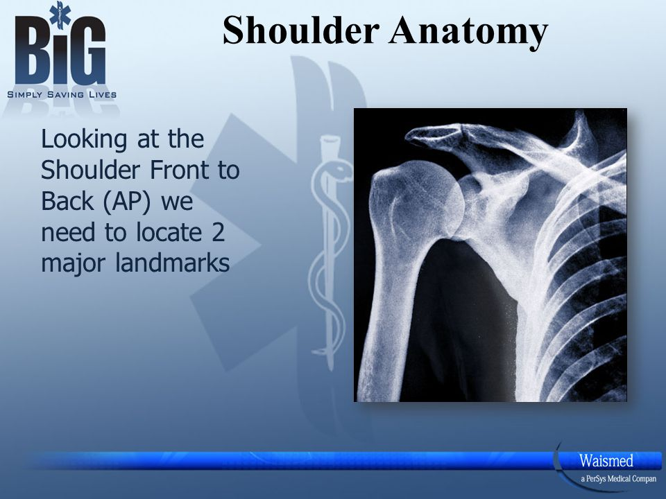 Shoulder Anatomy Looking at the Shoulder Front to Back (AP) we need to locate 2 major landmarks