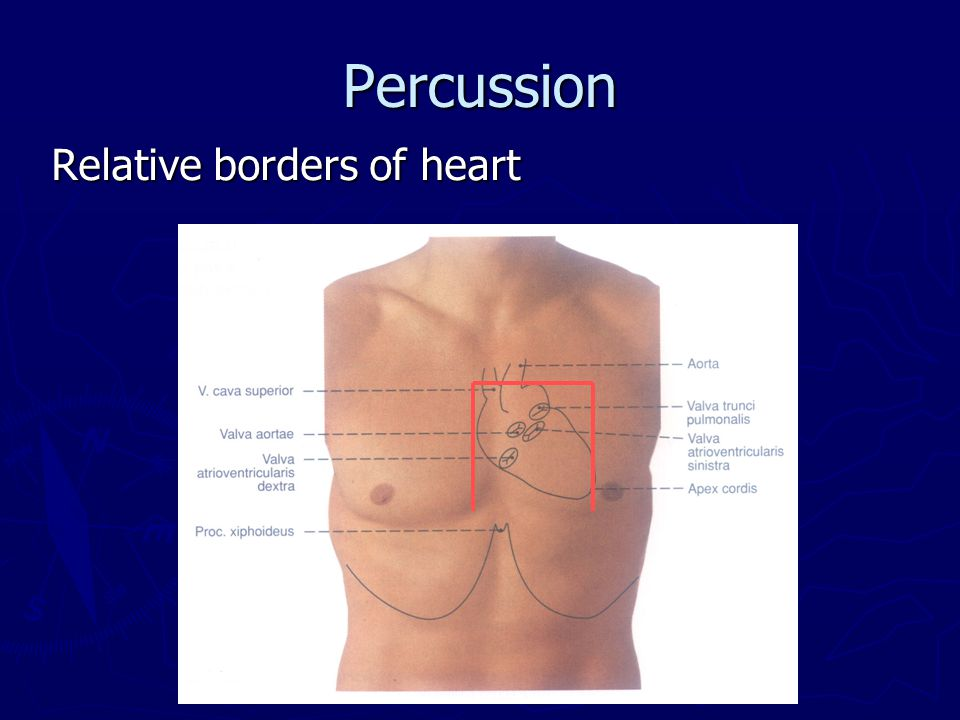 Percussion Relative borders of heart
