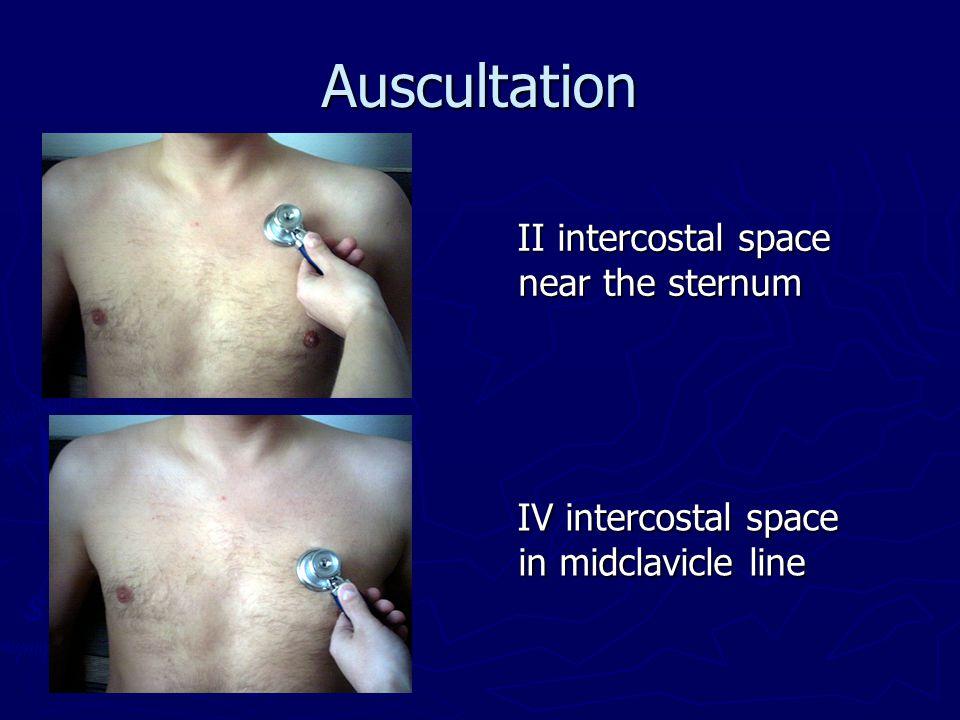 Auscultation IV intercostal space in midclavicle line IV intercostal space in midclavicle line II intercostal space near the sternum