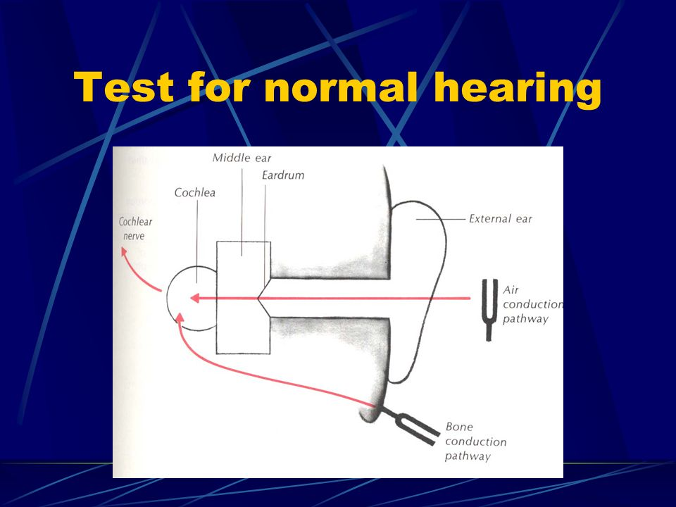 Test for normal hearing