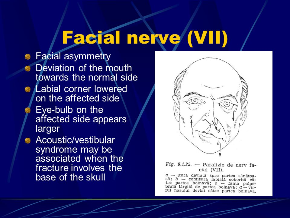 Facial nerve (VII) Facial asymmetry Deviation of the mouth towards the normal side Labial corner lowered on the affected side Eye-bulb on the affected side appears larger Acoustic/vestibular syndrome may be associated when the fracture involves the base of the skull