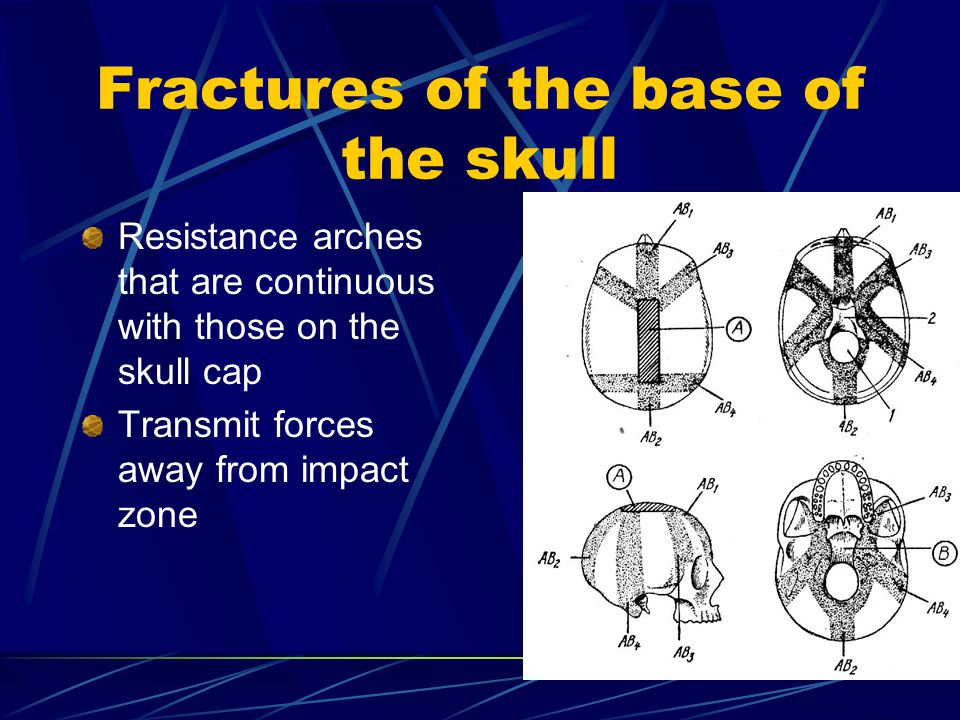 Fractures of the base of the skull Resistance arches that are continuous with those on the skull cap Transmit forces away from impact zone