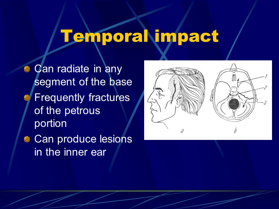Temporal impact Can radiate in any segment of the base Frequently fractures of the petrous portion Can produce lesions in the inner ear