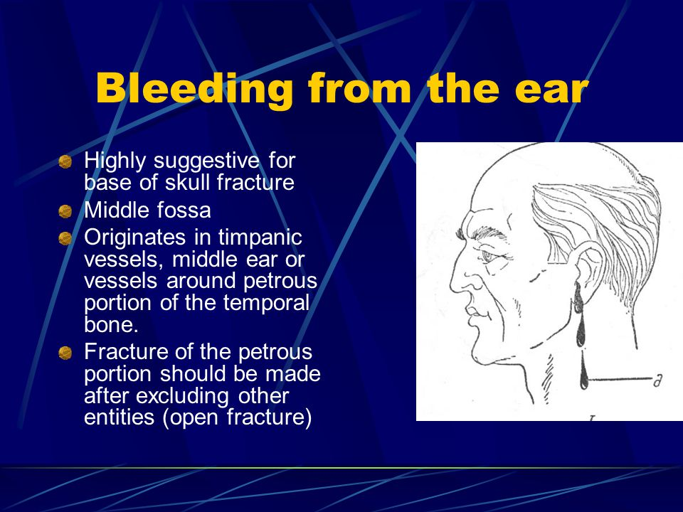 Bleeding from the ear Highly suggestive for base of skull fracture Middle fossa Originates in timpanic vessels, middle ear or vessels around petrous portion of the temporal bone.