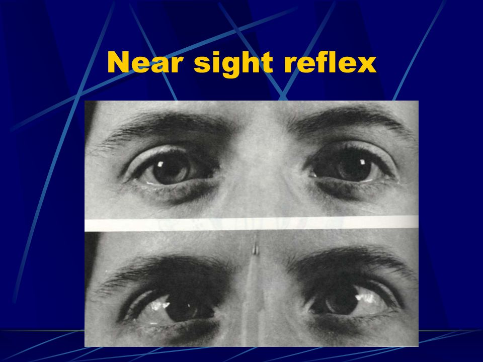Extern oculomotor (VI) Convergent strabismus, with deviation opposite in direction to the normal movement of the nerve