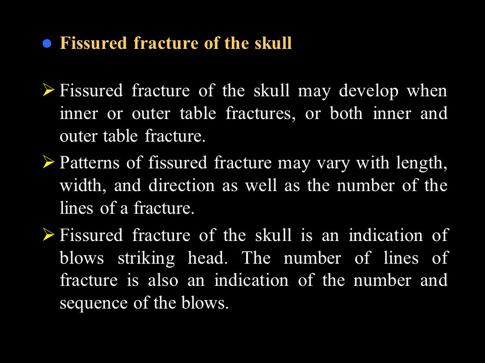 Fissured fracture of the skull  Fissured fracture of the skull may develop when inner or outer table fractures, or both inner and outer table fracture.