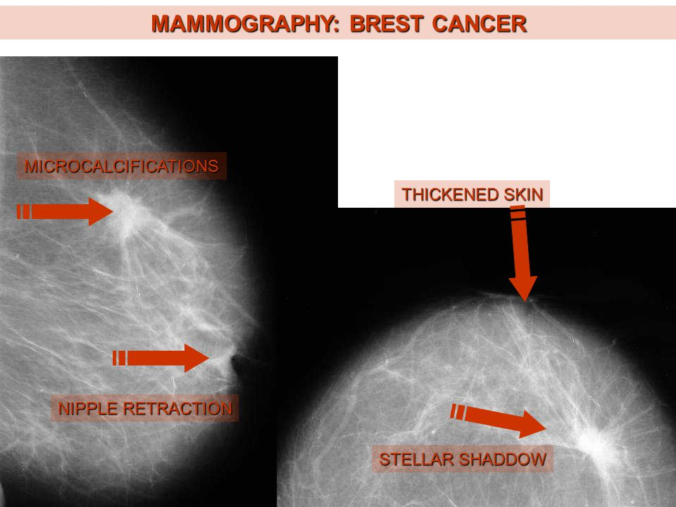 MAMMOGRAPHY: BREST CANCER MICROCALCIFICATIONS STELLAR SHADDOW NIPPLE RETRACTION THICKENED SKIN