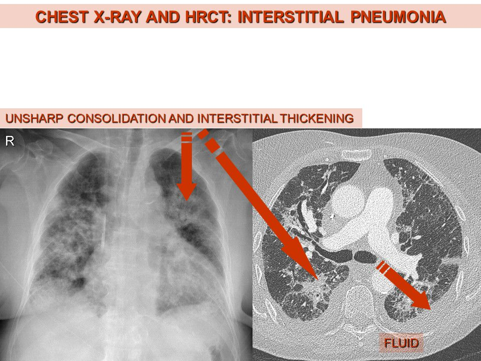 CHEST X-RAY AND HRCT: INTERSTITIAL PNEUMONIA UNSHARP CONSOLIDATION AND INTERSTITIAL THICKENING FLUID