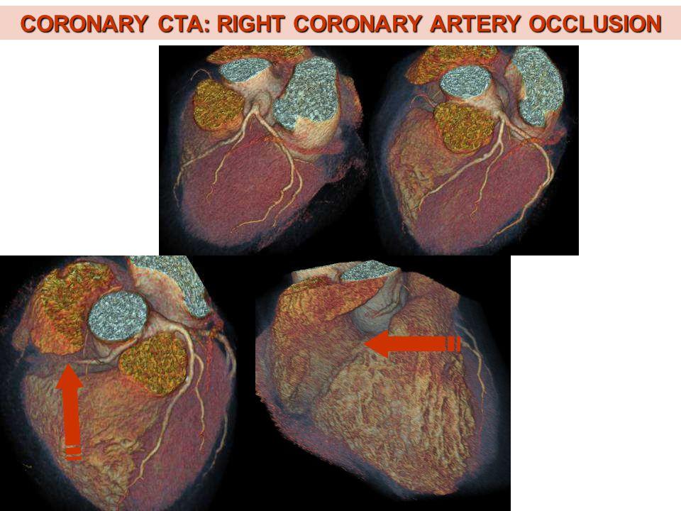 CORONARY CTA: RIGHT CORONARY ARTERY OCCLUSION