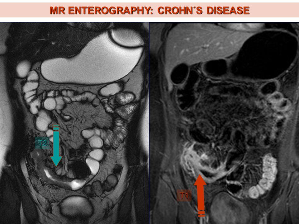 MR ENTEROGRAPHY: CROHN´S DISEASE T2 T1