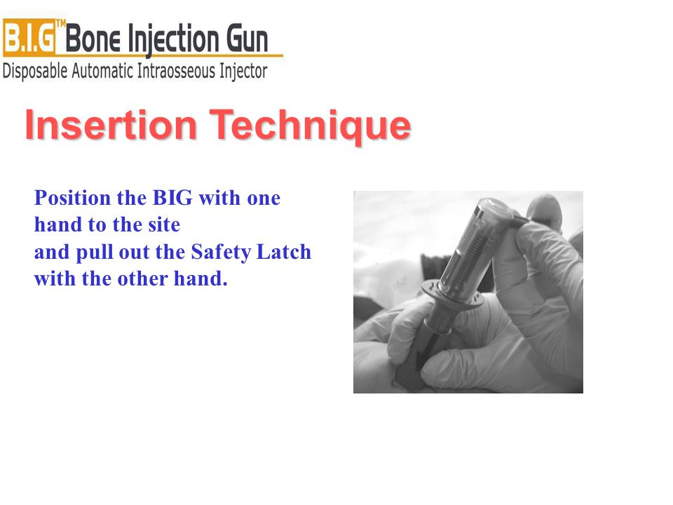 Insertion Technique Position the BIG with one hand to the site and pull out the Safety Latch with the other hand.
