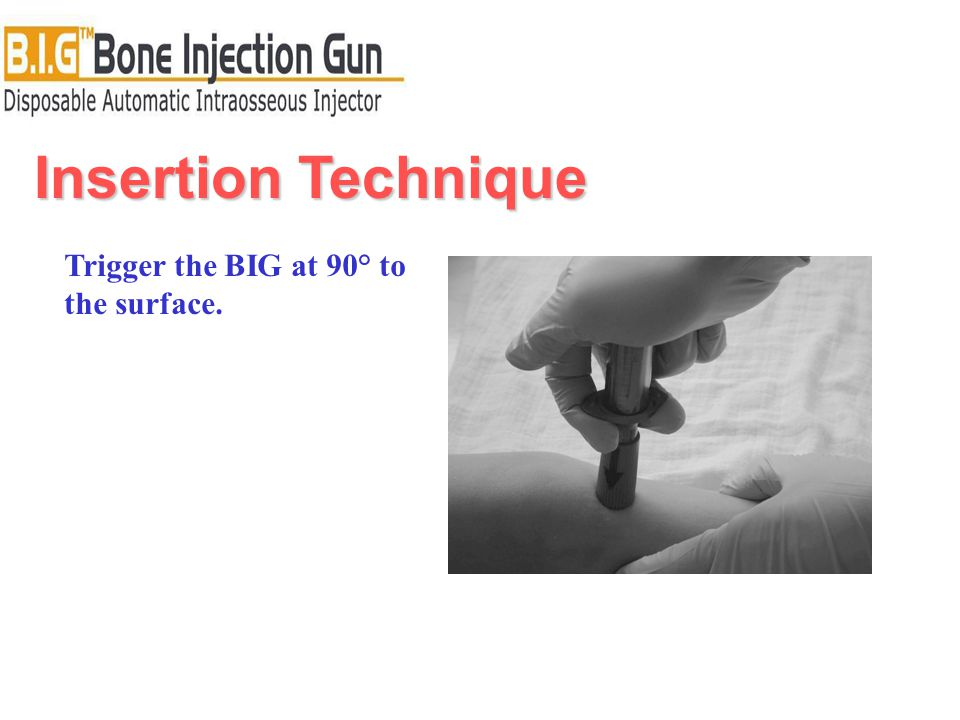 Insertion Technique Trigger the BIG at 90° to the surface.