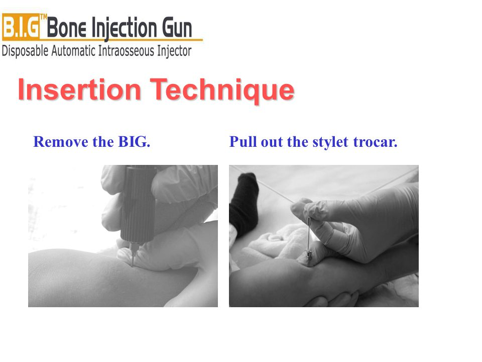 Insertion Technique Remove the BIG.Pull out the stylet trocar.