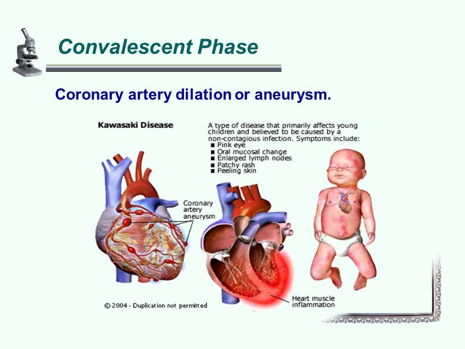 Convalescent Phase Coronary artery dilation or aneurysm.