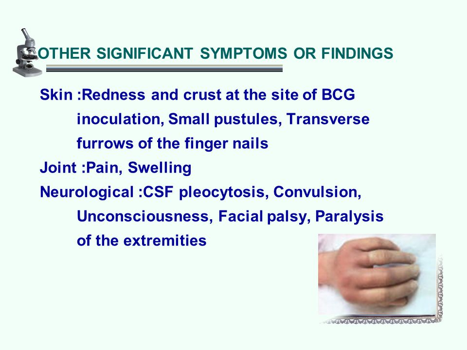 OTHER SIGNIFICANT SYMPTOMS OR FINDINGS Skin :Redness and crust at the site of BCG inoculation, Small pustules, Transverse furrows of the finger nails Joint :Pain, Swelling Neurological :CSF pleocytosis, Convulsion, Unconsciousness, Facial palsy, Paralysis of the extremities