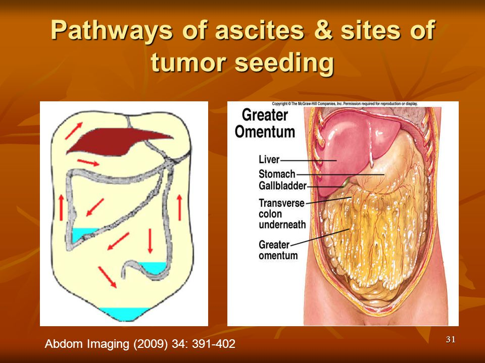 31 Abdom Imaging (2009) 34: 391-402 Pathways of ascites & sites of tumor seeding