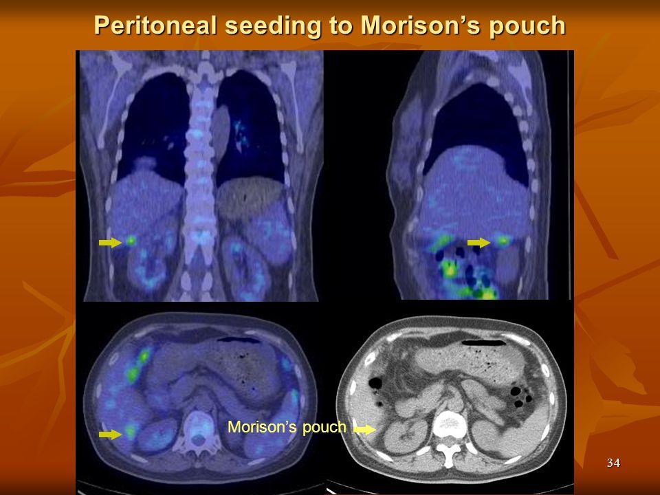 34 Peritoneal seeding to Morison's pouch Morison's pouch