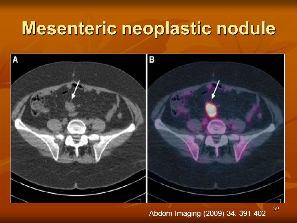39 Mesenteric neoplastic nodule Abdom Imaging (2009) 34: 391-402