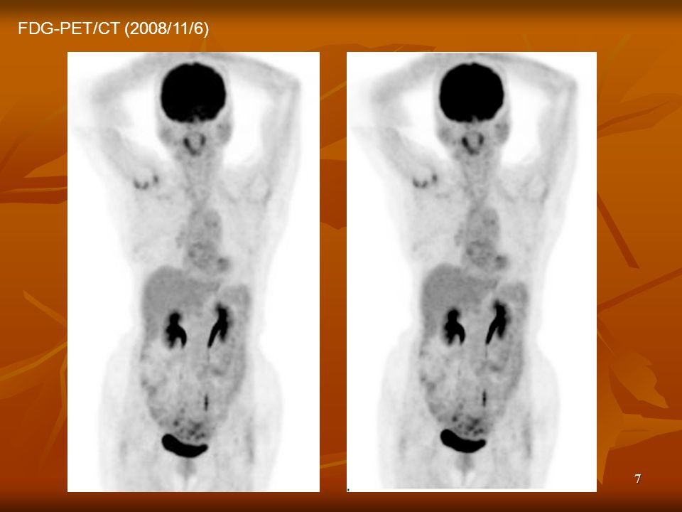 7 FDG-PET/CT (2008/11/6)