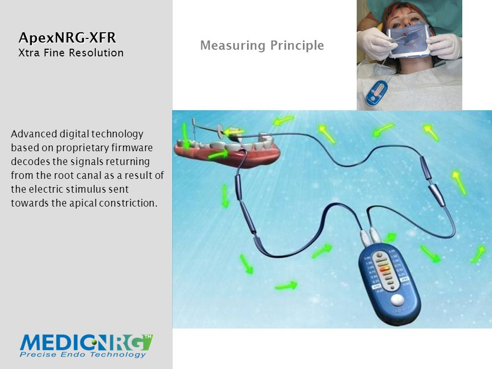 ApexNRG-XFR Xtra Fine Resolution Advanced digital technology based on proprietary firmware decodes the signals returning from the root canal as a result of the electric stimulus sent towards the apical constriction.