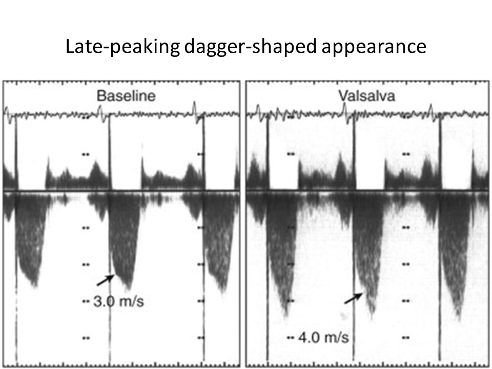 Late-peaking dagger-shaped appearance