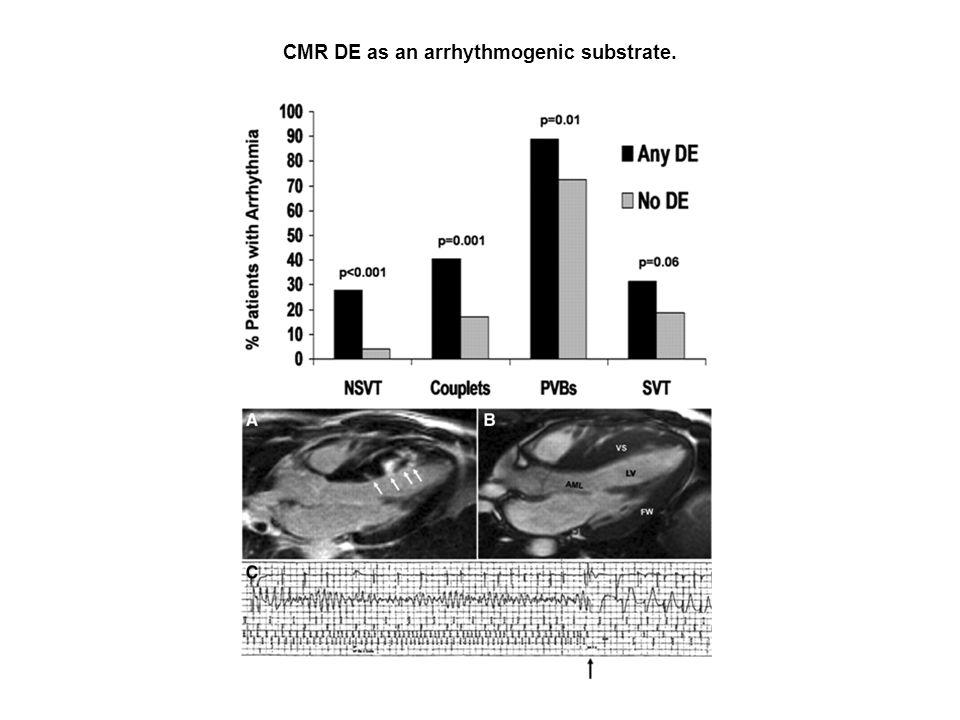 CMR DE as an arrhythmogenic substrate.