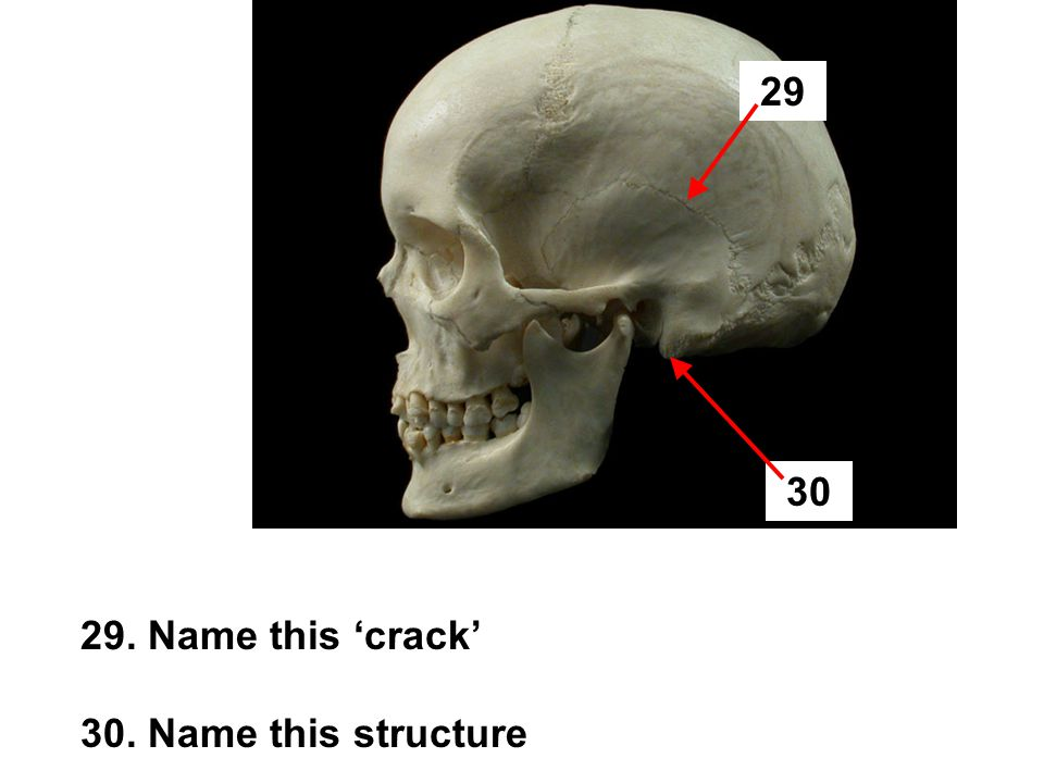 29. Name this 'crack' 30. Name this structure 29 30