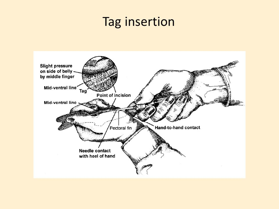 Tag insertion