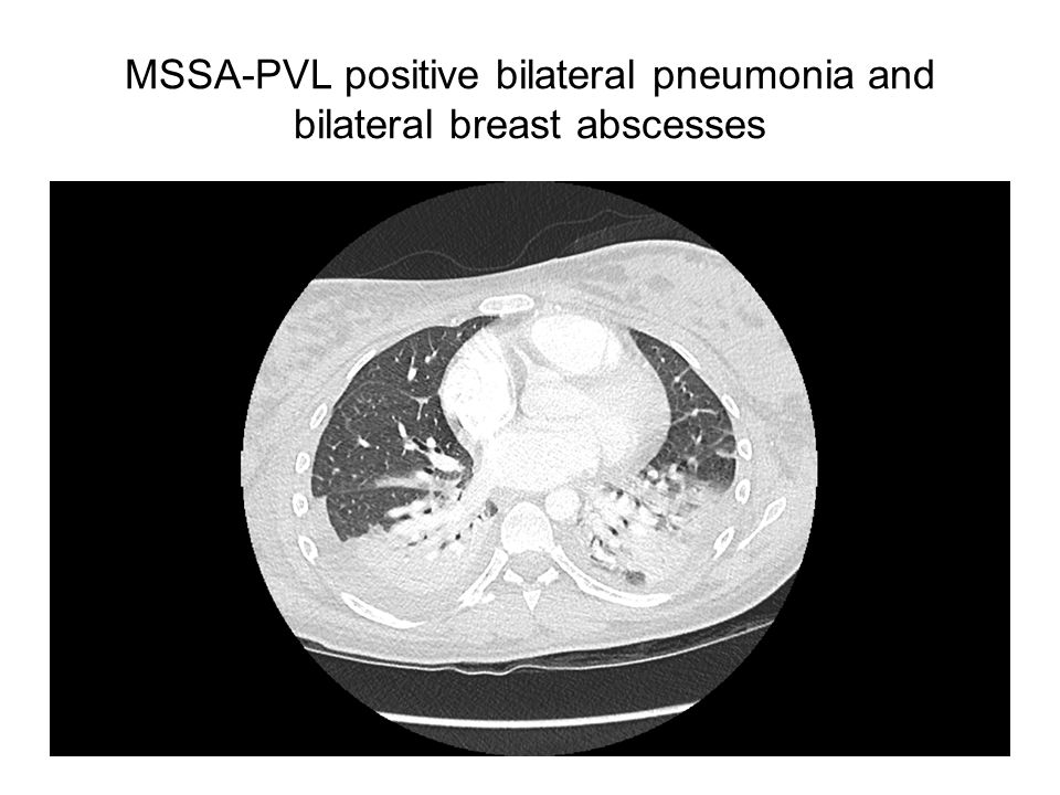 MSSA-PVL positive bilateral pneumonia and bilateral breast abscesses