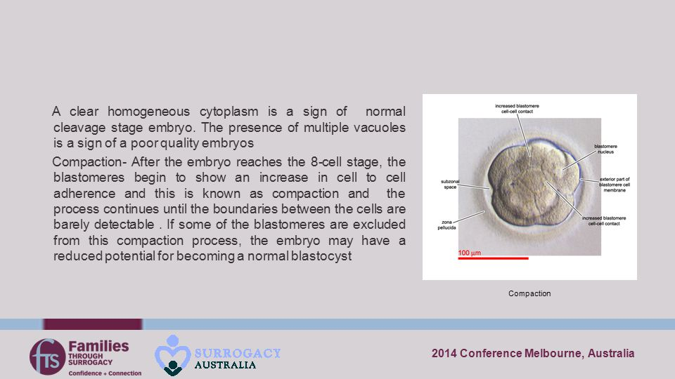 2014 Conference Melbourne, Australia A clear homogeneous cytoplasm is a sign of normal cleavage stage embryo. The presence of multiple vacuoles is a s