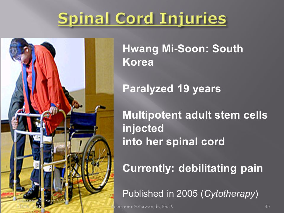 Presentasi 16 Sept.2011, FIMA, YARSIBoenjamin Setiawan,dr.,Ph.D.45 Hwang Mi-Soon: South Korea Paralyzed 19 years Multipotent adult stem cells injected into her spinal cord Currently: debilitating pain Published in 2005 (Cytotherapy)