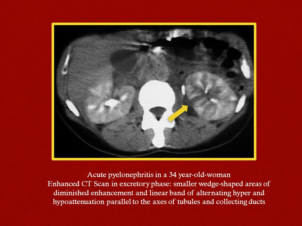 Acute pyelonephritis in a 34 year-old-woman Enhanced CT Scan in excretory phase: smaller wedge-shaped areas of diminished enhancement and linear band of alternating hyper and hypoattenuation parallel to the axes of tubules and collecting ducts