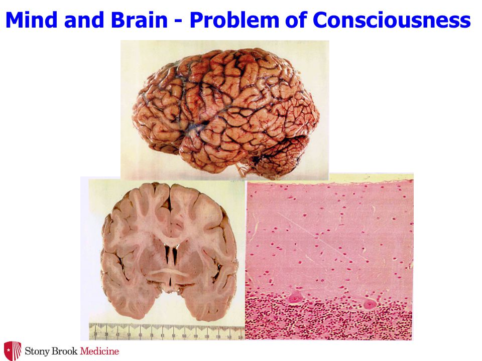 Mind and Brain - Problem of Consciousness
