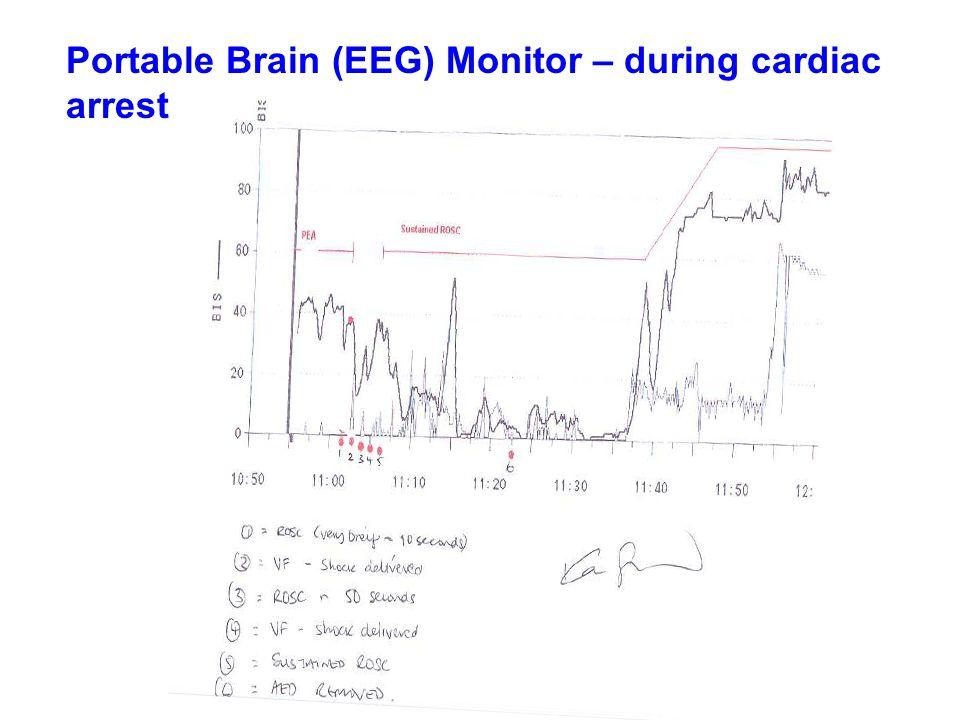 Portable Brain (EEG) Monitor – during cardiac arrest